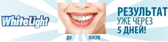 Отбеливание_зубов